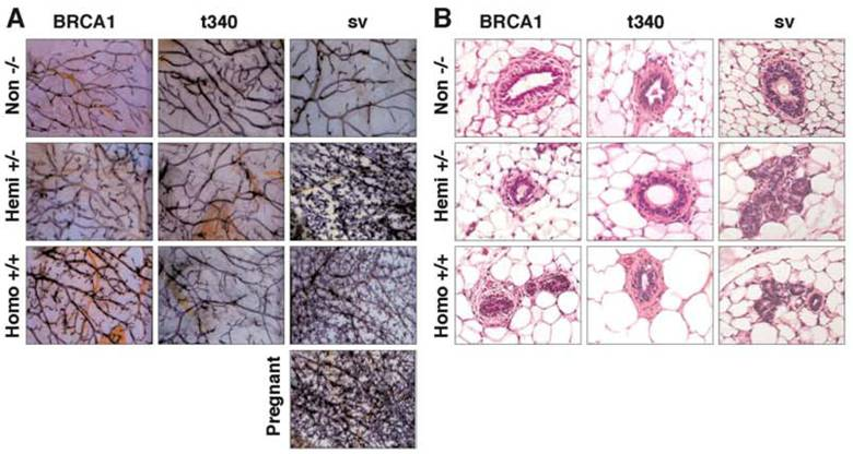 Effects of BRCA1 Transgene Expression on Murine Mammary ...