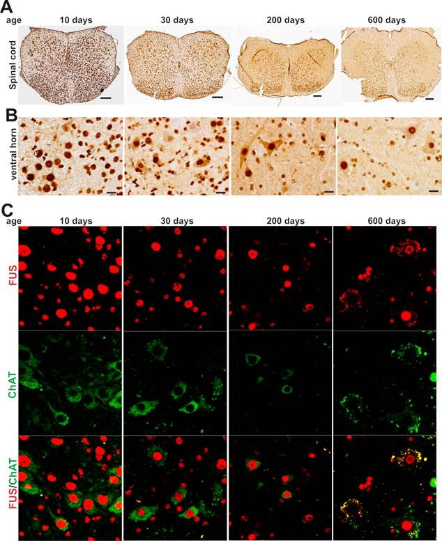 Sustained Expression of TDP-43 and FUS in Motor Neurons in Rodent's Lifetime