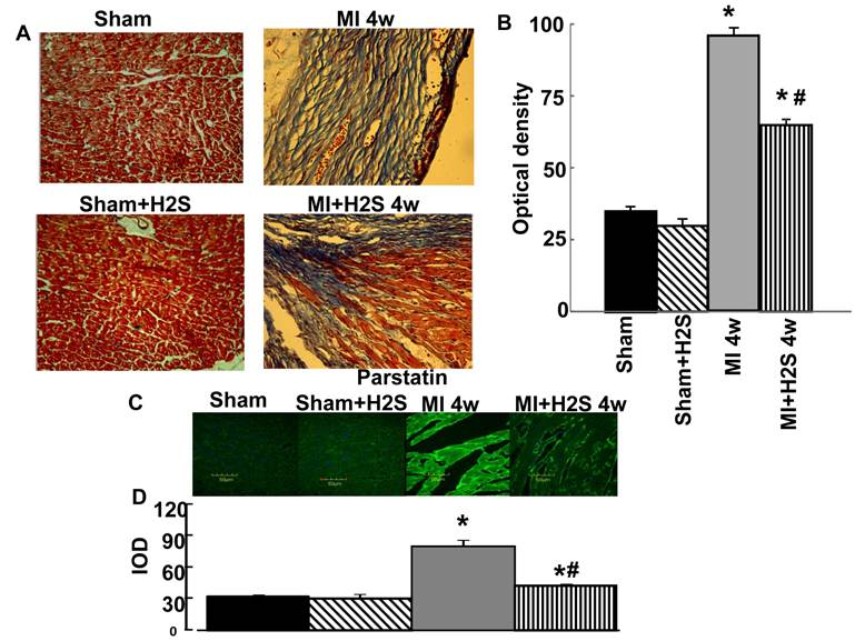 Hydrogen Sulfide Mitigates Cardiac Remodeling During Myocardial