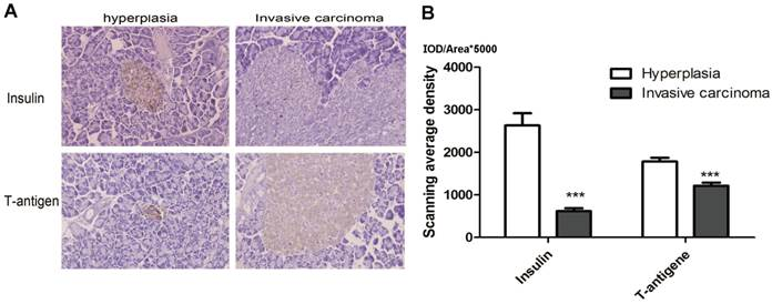 Stage 4 Lung Cancer >> Micrometastasis Expressing Insulin Arise in Lung and Spleen at Advanced Stage of Rip1-Tag2 ...