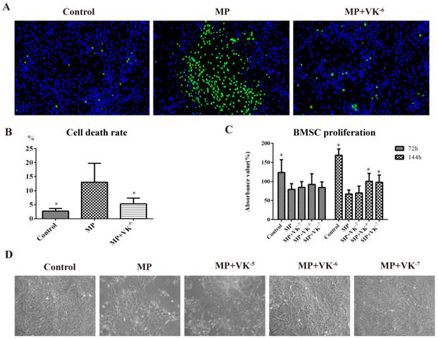 Vitamin K2 Prevents Glucocorticoid-induced Osteonecrosis of the