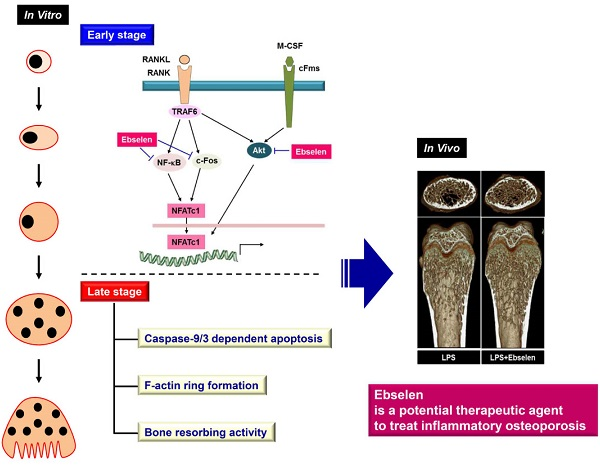 Essay Sample on Osteoporosis: Research on Its Prevention | blogger.com