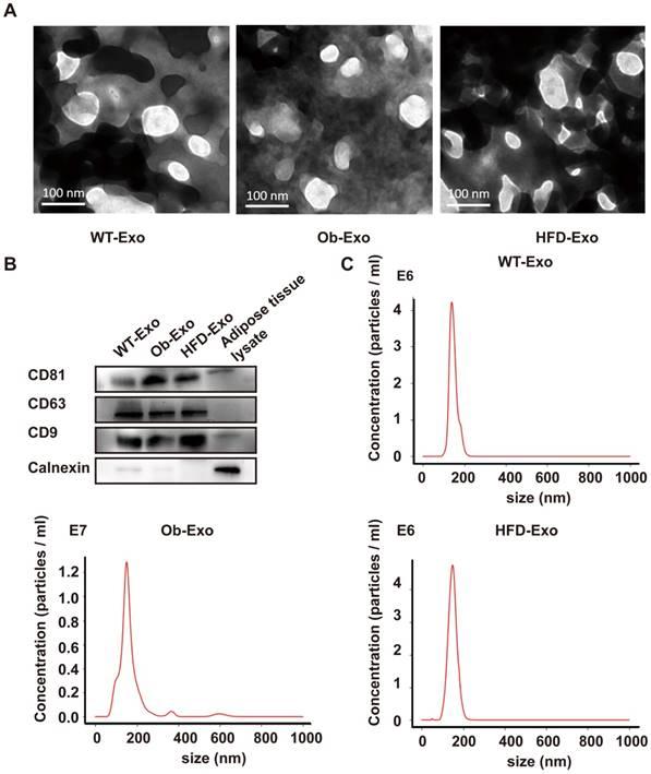 Exosomal transfer of obesity adipose tissue for decreased miR-141-3p